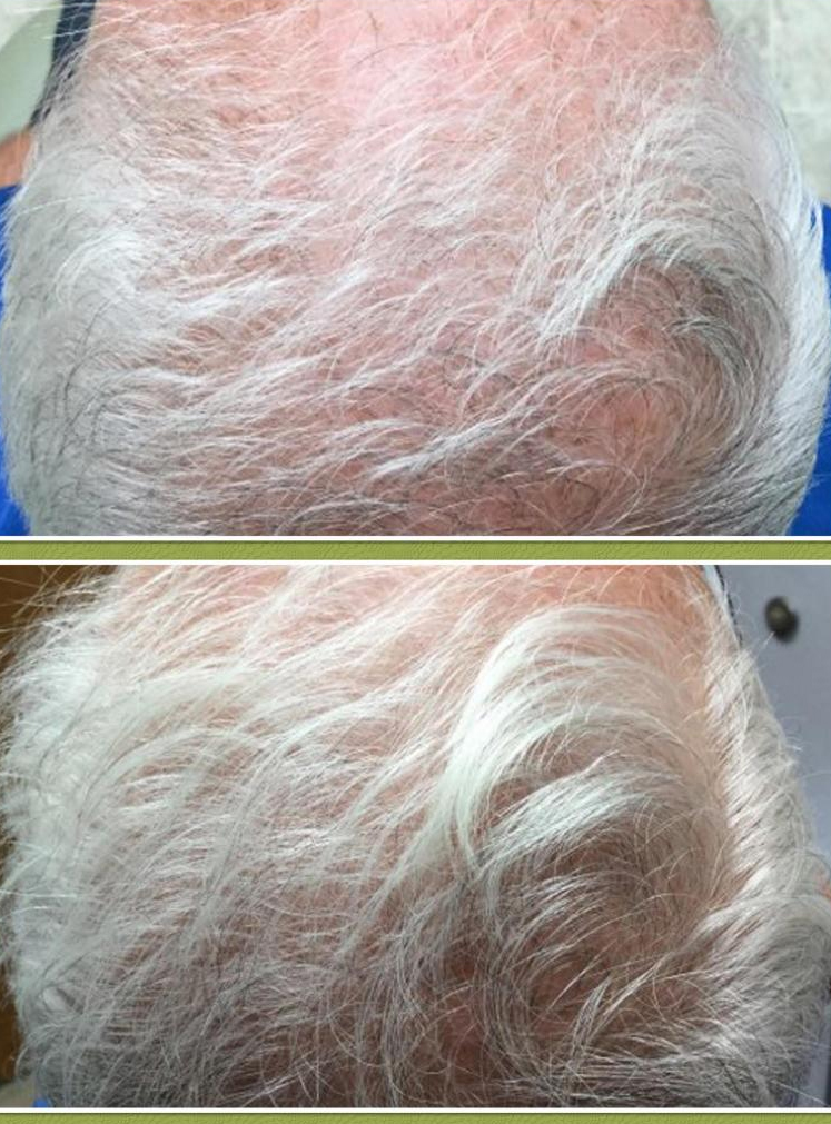 PRP Treatment (for Hair Loss)
