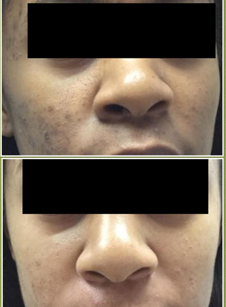 Treatment for Acne & Discoloration