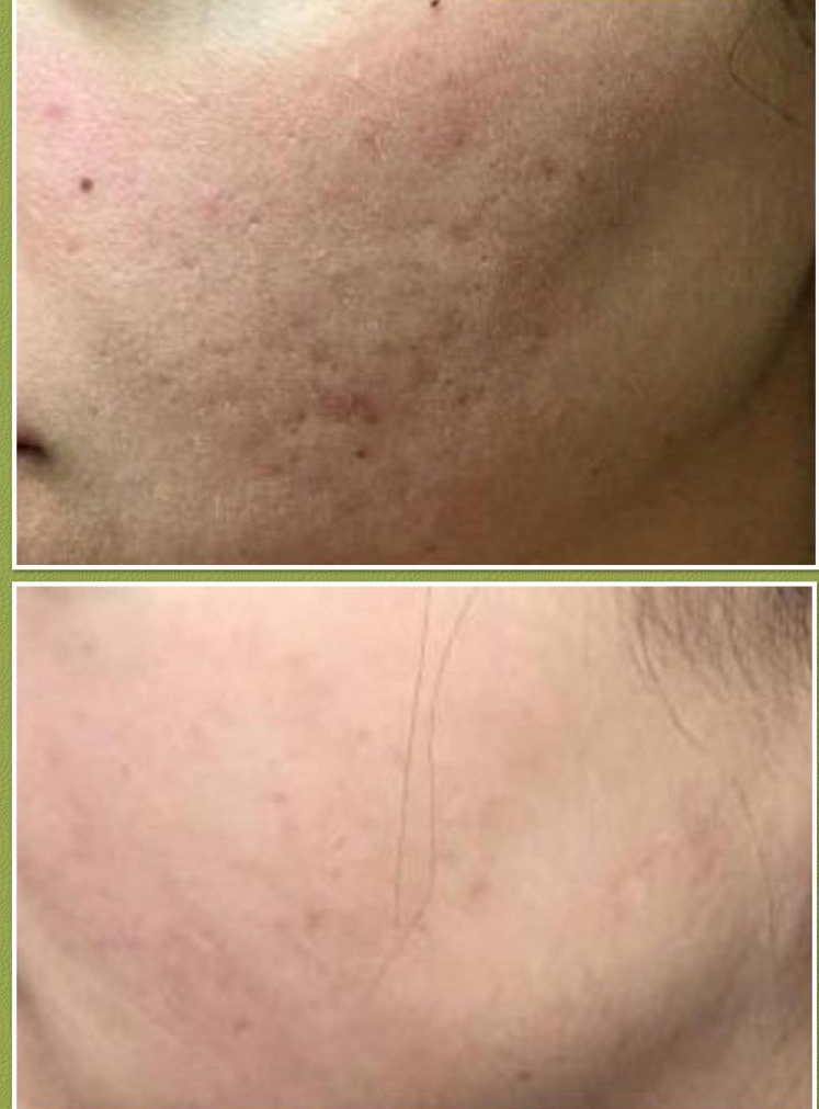 Microneedling (for acne scarring)